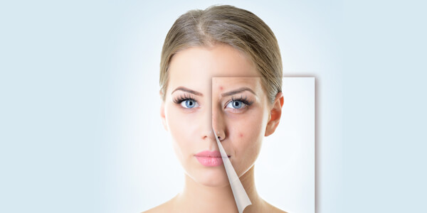 Get-Younger-Look-with-Anti-Aging-Facial