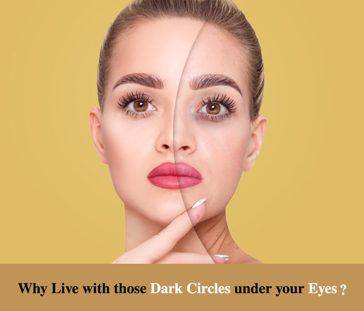 Why Live with those Dark Circles under your Eyes?